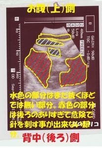 7 くららちゃん卵巣嚢胞のエコー画像 005.jpg